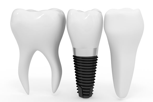 Periodontics Implants